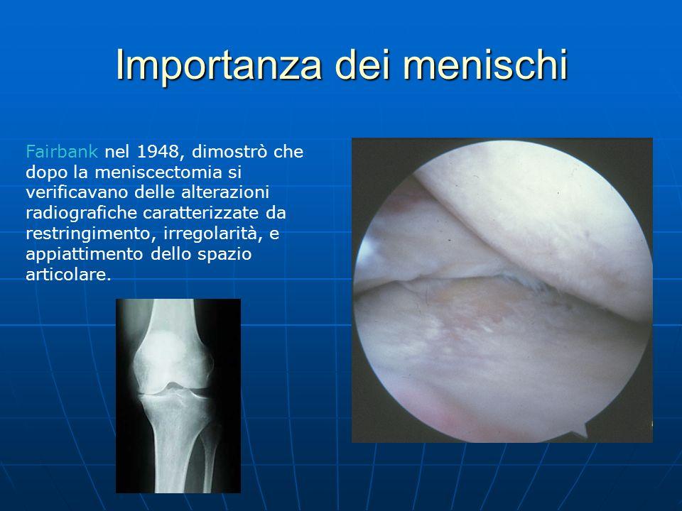 Importanza dei menischi Fairbank nel 1948, dimostrò che dopo la meniscectomia si verificavano delle alterazioni radiografiche caratterizzate da restri