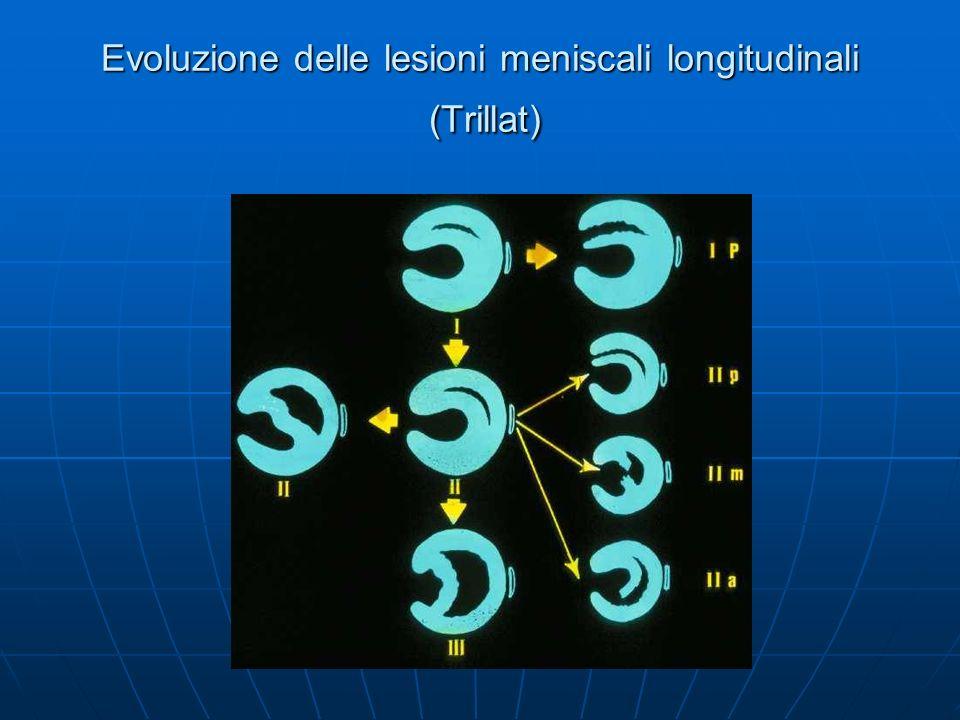 Evoluzione delle lesioni meniscali longitudinali (Trillat)