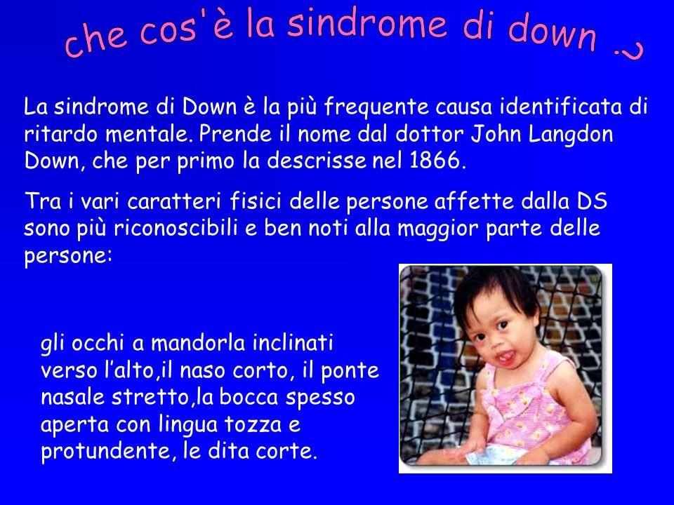 La sindrome di Down è la più frequente causa identificata di ritardo mentale. Prende il nome dal dottor John Langdon Down, che per primo la descrisse