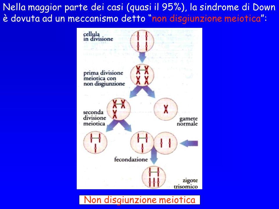 Nella maggior parte dei casi (quasi il 95%), la sindrome di Down è dovuta ad un meccanismo detto non disgiunzione meiotica: Non disgiunzione meiotica