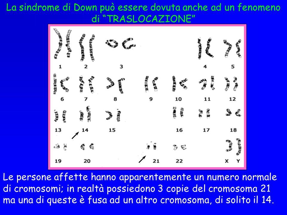 La sindrome di Down può essere dovuta anche ad un fenomeno di TRASLOCAZIONE Le persone affette hanno apparentemente un numero normale di cromosomi; in