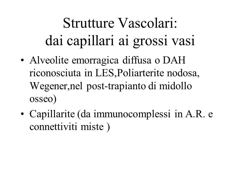 Strutture Vascolari: dai capillari ai grossi vasi Alveolite emorragica diffusa o DAH riconosciuta in LES,Poliarterite nodosa, Wegener,nel post-trapian