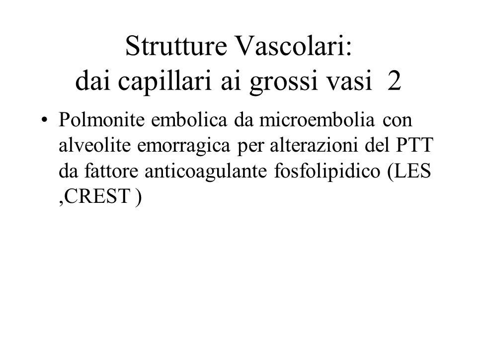 Strutture Vascolari: dai capillari ai grossi vasi 2 Polmonite embolica da microembolia con alveolite emorragica per alterazioni del PTT da fattore ant