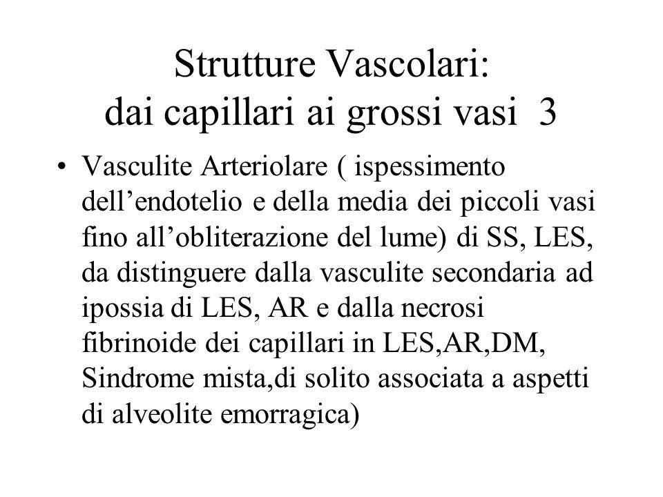 Strutture Vascolari: dai capillari ai grossi vasi 3 Vasculite Arteriolare ( ispessimento dellendotelio e della media dei piccoli vasi fino alloblitera