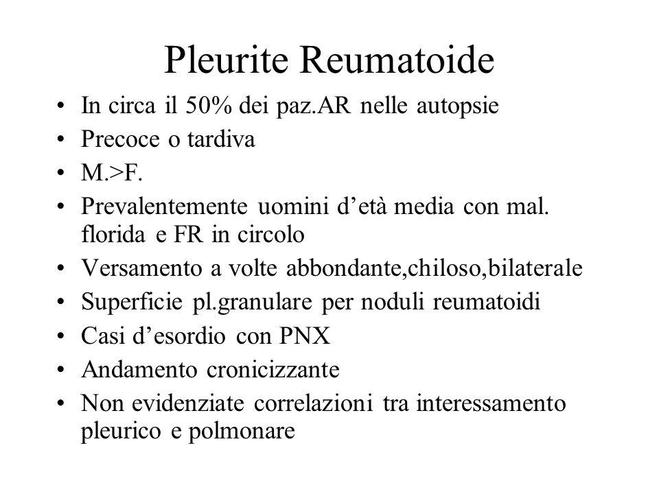 Pleurite Reumatoide In circa il 50% dei paz.AR nelle autopsie Precoce o tardiva M.>F. Prevalentemente uomini detà media con mal. florida e FR in circo