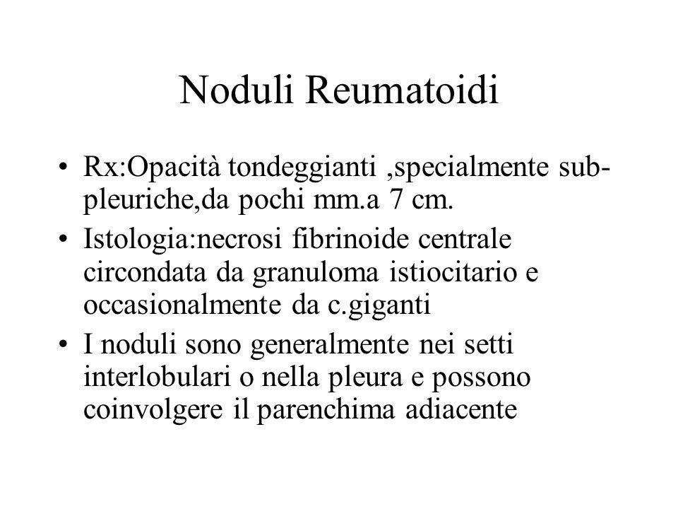 Noduli Reumatoidi Rx:Opacità tondeggianti,specialmente sub- pleuriche,da pochi mm.a 7 cm. Istologia:necrosi fibrinoide centrale circondata da granulom