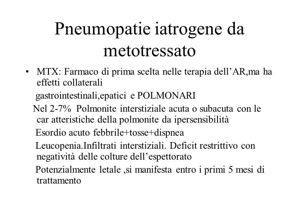 Pneumopatie iatrogene da metotressato MTX: Farmaco di prima scelta nelle terapia dellAR,ma ha effetti collaterali gastrointestinali,epatici e POLMONAR