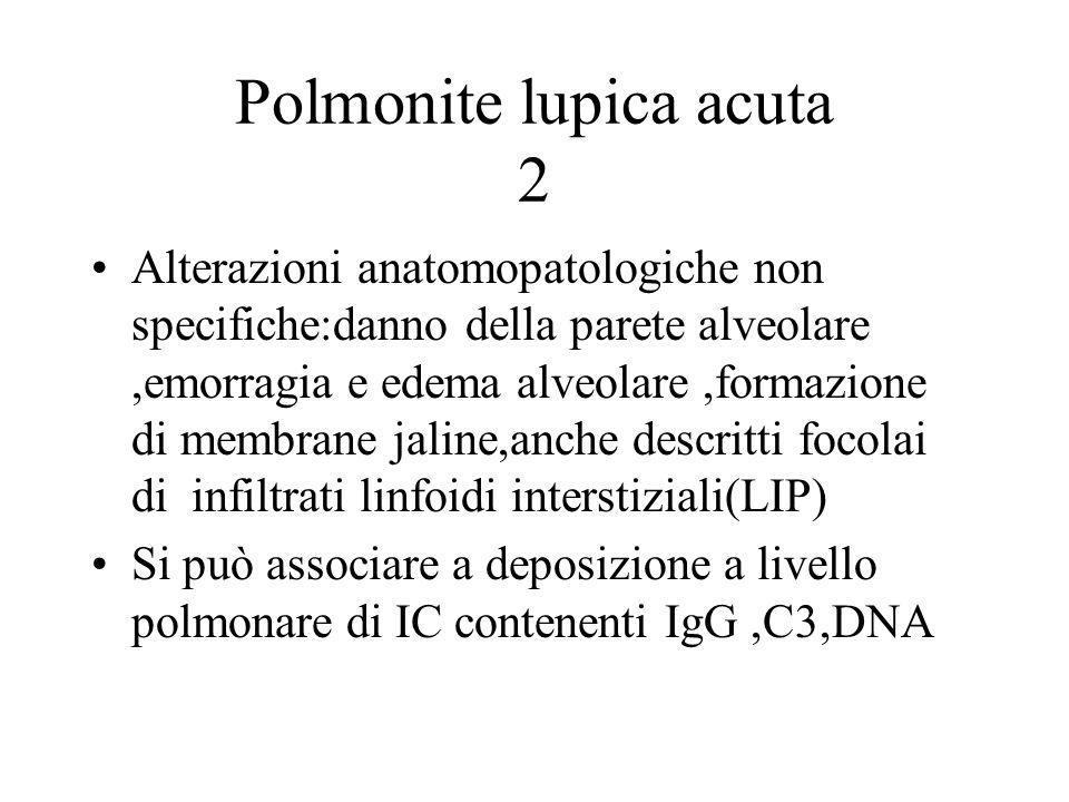 Polmonite lupica acuta 2 Alterazioni anatomopatologiche non specifiche:danno della parete alveolare,emorragia e edema alveolare,formazione di membrane