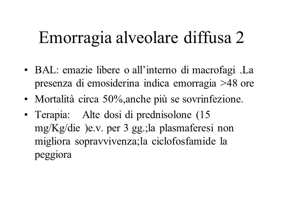 Emorragia alveolare diffusa 2 BAL: emazie libere o allinterno di macrofagi.La presenza di emosiderina indica emorragia >48 ore Mortalità circa 50%,anc