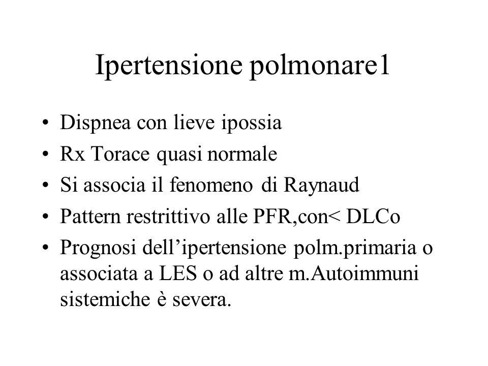 Ipertensione polmonare1 Dispnea con lieve ipossia Rx Torace quasi normale Si associa il fenomeno di Raynaud Pattern restrittivo alle PFR,con< DLCo Pro