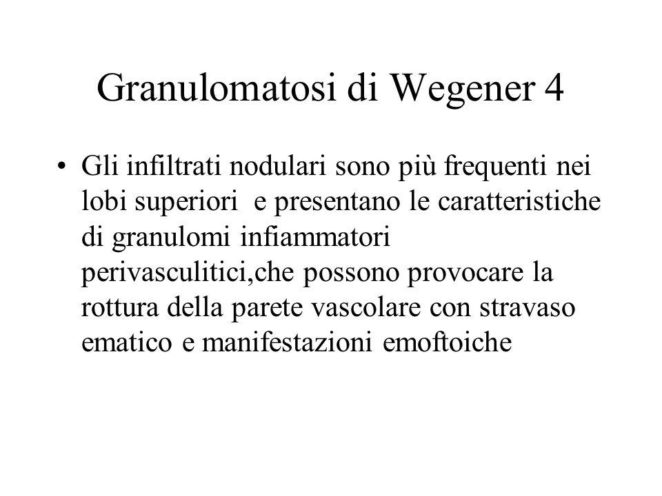 Granulomatosi di Wegener 4 Gli infiltrati nodulari sono più frequenti nei lobi superiori e presentano le caratteristiche di granulomi infiammatori per