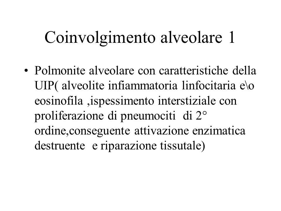 Coinvolgimento alveolare 1 Polmonite alveolare con caratteristiche della UIP( alveolite infiammatoria linfocitaria e\o eosinofila,ispessimento interst