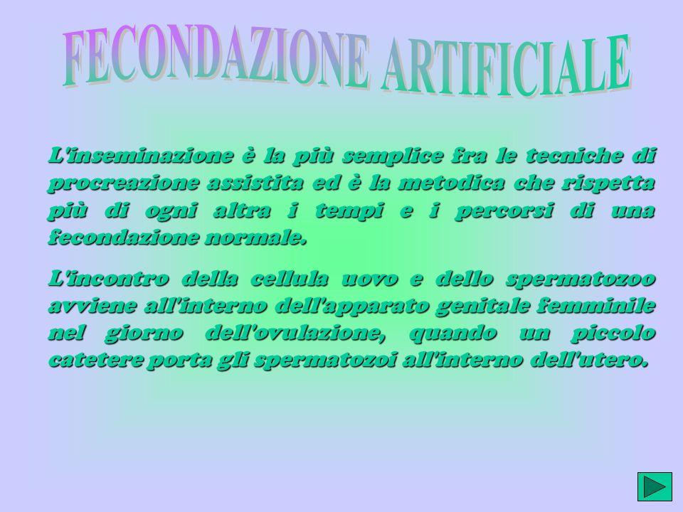 FECONDAZIONE ARTIFICIALE Inseminazione artificiale Fivet Microiniezione Intracitoplasmatica (ICSI)Microiniezione Intracitoplasmatica (ICSI) Gift, Zift