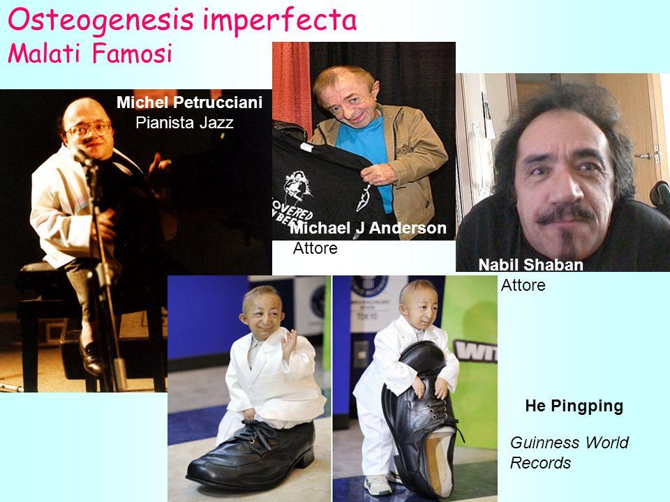 Osteogenesis imperfecta Malati Famosi Michel Petrucciani Pianista Jazz Michael J Anderson Attore Nabil Shaban Attore He Pingping Guinness World Records