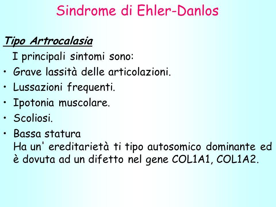 Sindrome di Ehler-Danlos Tipo Artrocalasia I principali sintomi sono: Grave lassità delle articolazioni.