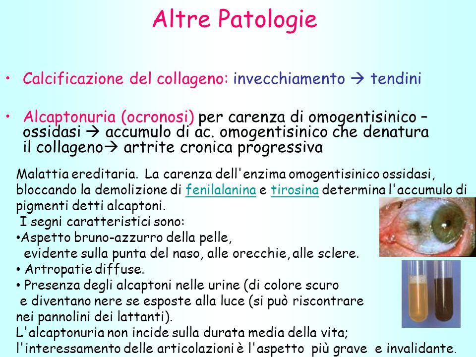 Altre Patologie Calcificazione del collageno: invecchiamento tendini Alcaptonuria (ocronosi) per carenza di omogentisinico – ossidasi accumulo di ac.
