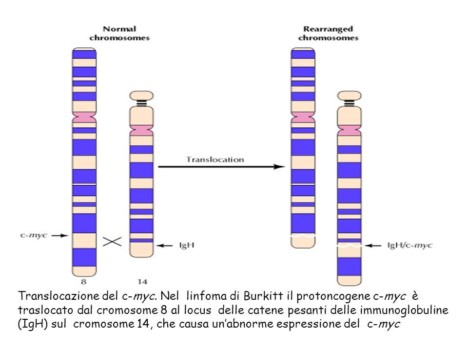 Translocazione del c-myc. Nel linfoma di Burkitt il protoncogene c-myc è traslocato dal cromosome 8 al locus delle catene pesanti delle immunoglobulin