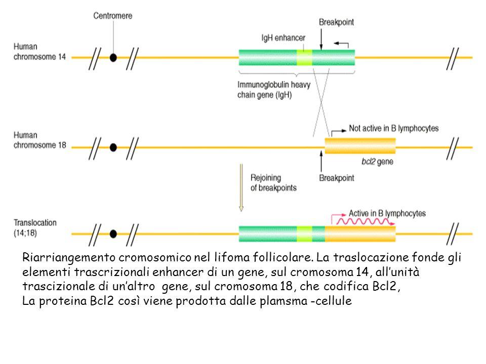 Riarriangemento cromosomico nel lifoma follicolare. La traslocazione fonde gli elementi trascrizionali enhancer di un gene, sul cromosoma 14, allunità
