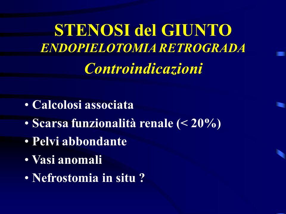 STENOSI del GIUNTO ENDOPIELOTOMIA RETROGRADA Calcolosi associata Scarsa funzionalità renale (< 20%) Pelvi abbondante Vasi anomali Nefrostomia in situ