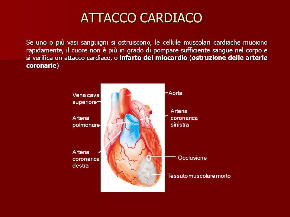 ATTACCO CARDIACO Se uno o più vasi sanguigni si ostruiscono, le cellule muscolari cardiache muoiono rapidamente, il cuore non è più in grado di pompar