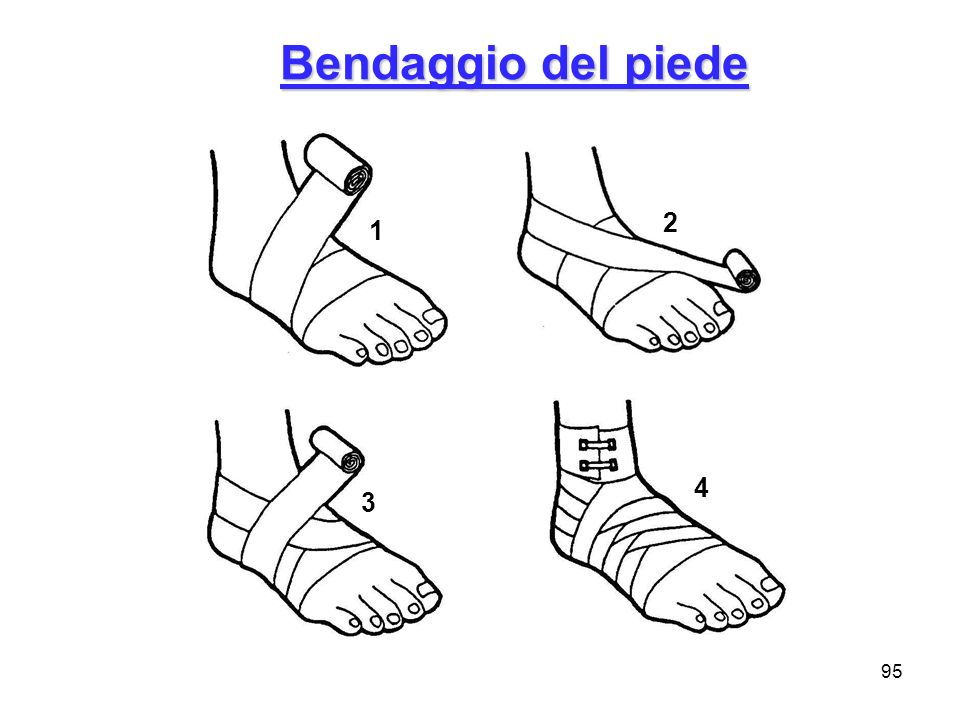 95 Bendaggio del piede 1 4 3 2