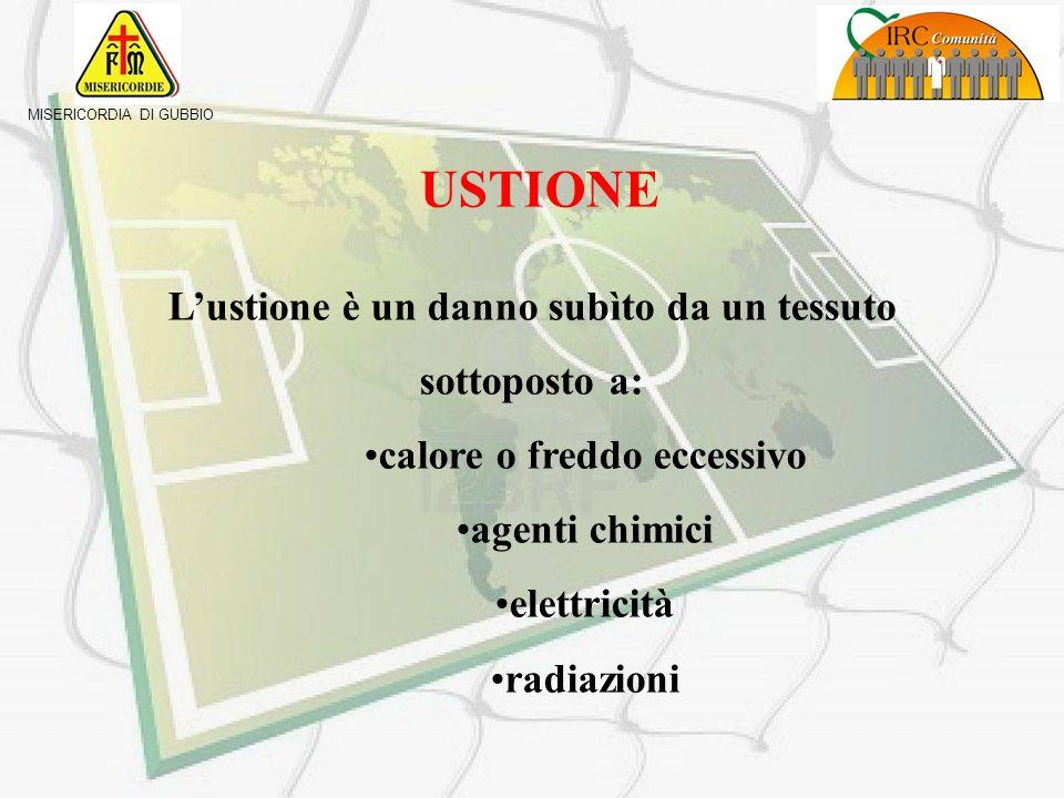 MISERICORDIA DI GUBBIO LE USTIONI GUIDA AL PRIMO SOCCORSO