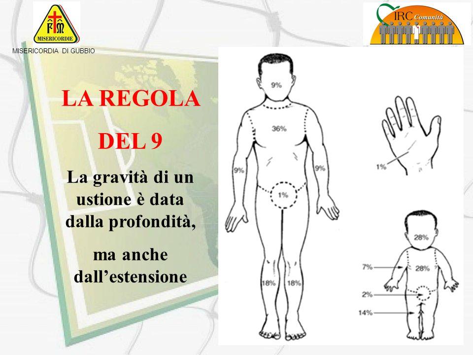 MISERICORDIA DI GUBBIO USTIONI DI III GRADO - tessuti danneggiati o distrutti - pelle carbonizzata - assenza di dolore - presenza di cicatrici