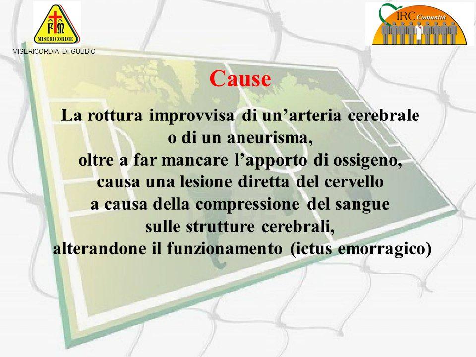 MISERICORDIA DI GUBBIO Cause La formazione di un trombo o la presenza di un embolo determina unostruzione improvvisa di un vaso cerebrale con arresto