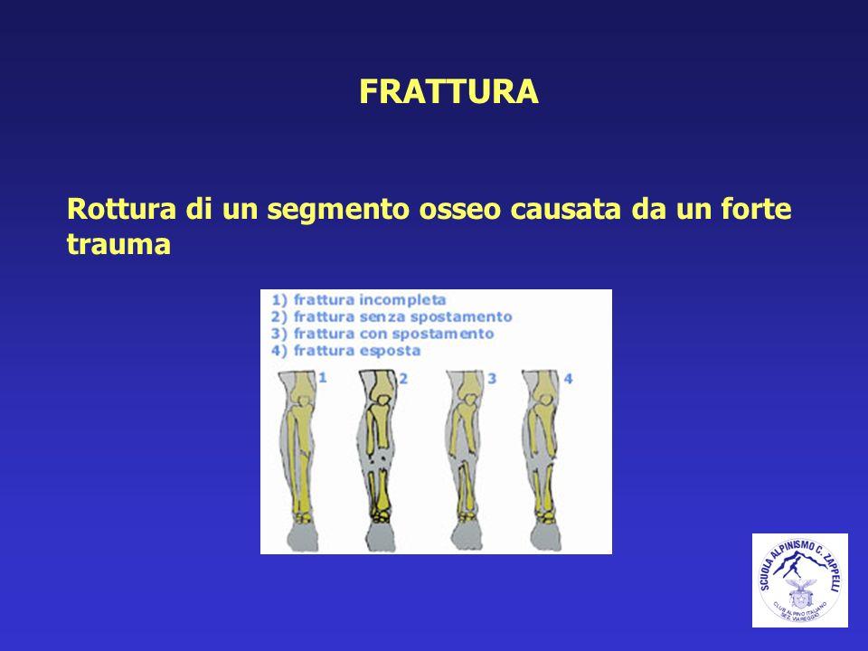 FRATTURA Rottura di un segmento osseo causata da un forte trauma