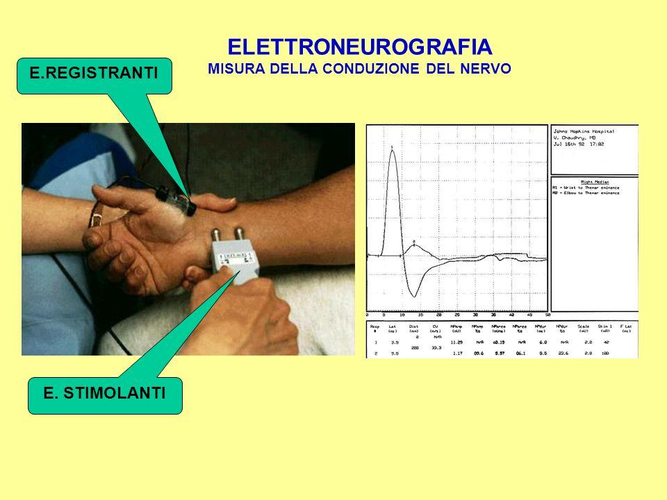 ELETTROMIOGRAFIA Tracciato interferenziale dell'EMG con ago Normale Neurogeno Miogeno