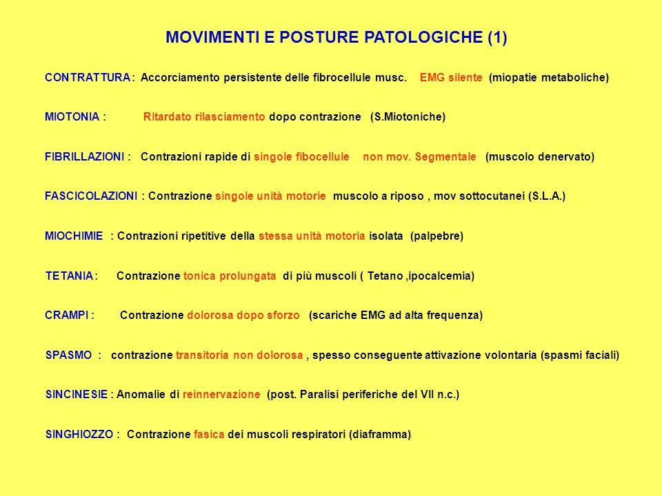 SINDROMI MOTORIE S. MUSCOLARE (MIOPATIE) S.DELLA GIUNZIONE N.MUSCOLARE (MIASTENIA, L.EATON, BOTULISMO) S.DEL MOTONEURONE INFERIORE (PAR.PERIFERICA, SL