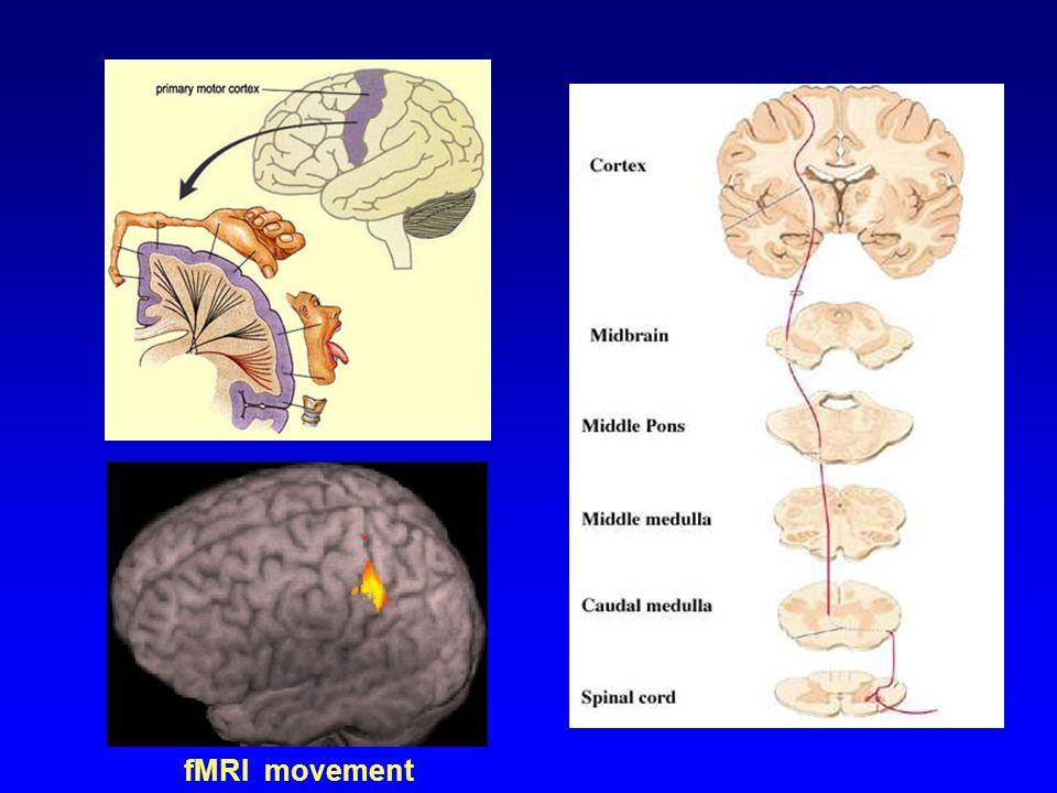 MOVIMENTI E POSTURE PATOLOGICHE (1) CONTRATTURA : Accorciamento persistente delle fibrocellule musc.