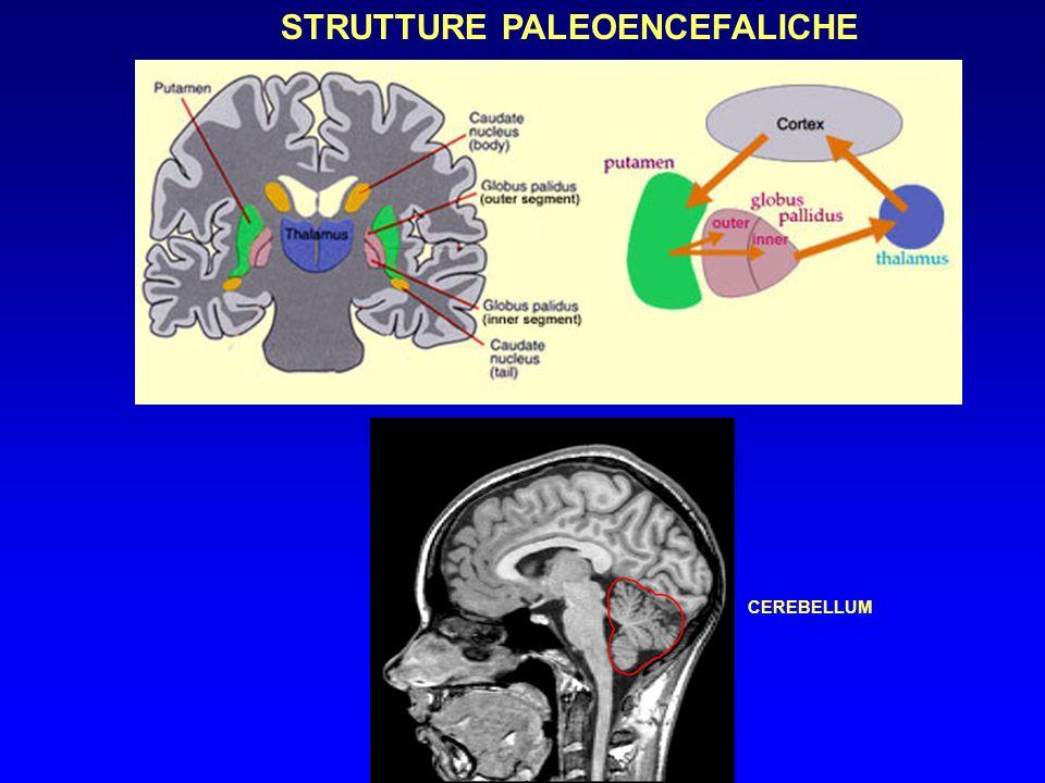 MOVIMENTI E POSTURE PATOLOGICHE (2) SPASMI SPINALI: ipertonia diffusa dolorosa (Tetano,stricnina) MIOCLONIE : Contrazioni aritmiche rapide intermittenti di più unità motorie ASTERIXI : Brusco cedimento della mano protesa (mioclono negativo) encefalopatie metaboliche TREMORE : A riposo alternante (agonisti-antagonisti) 4-6 Hz Parkinson Attitudinale sincrono 8-12 Hz da fatica -essenziale Intenzonale variabile cerebellare MOV.COREICI : Improvvisi aritmici afinalistici (pulcinella) M.degenerative nuclei basali MOV.ATETOSICI : Subcontinui lenti vermicolari (pose ginniche ) nucleo striato BALLISMO : Improvviso violento ampio emilaterale (corpo di Luys) DISTONIE : Contrazioni lente,mantenute,mo.