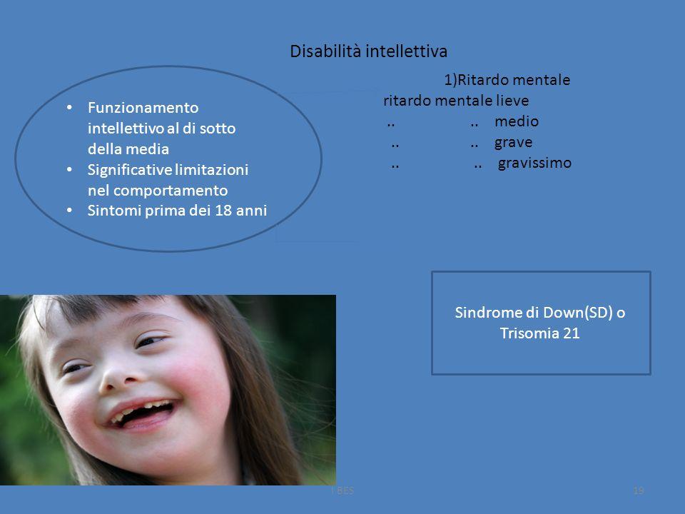 I BES19 Funzionamento intellettivo al di sotto della media Significative limitazioni nel comportamento Sintomi prima dei 18 anni Disabilità intellettiva 1)Ritardo mentale ritardo mentale lieve....