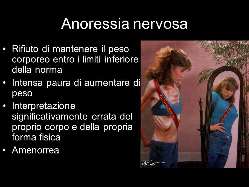 Anoressia nervosa Rifiuto di mantenere il peso corporeo entro i limiti inferiore della norma Intensa paura di aumentare di peso Interpretazione signif