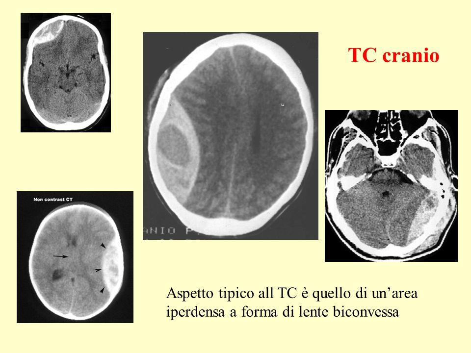 TC cranio Aspetto tipico all TC è quello di un'area iperdensa a forma di lente biconvessa