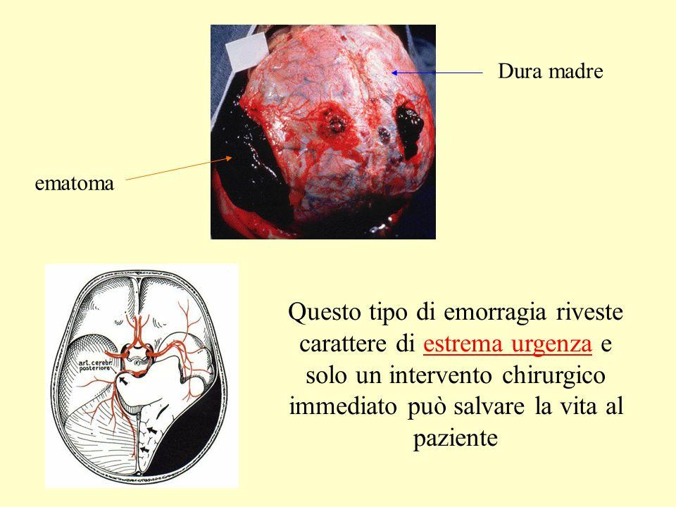 Questo tipo di emorragia riveste carattere di estrema urgenza e solo un intervento chirurgico immediato può salvare la vita al paziente Dura madre ematoma