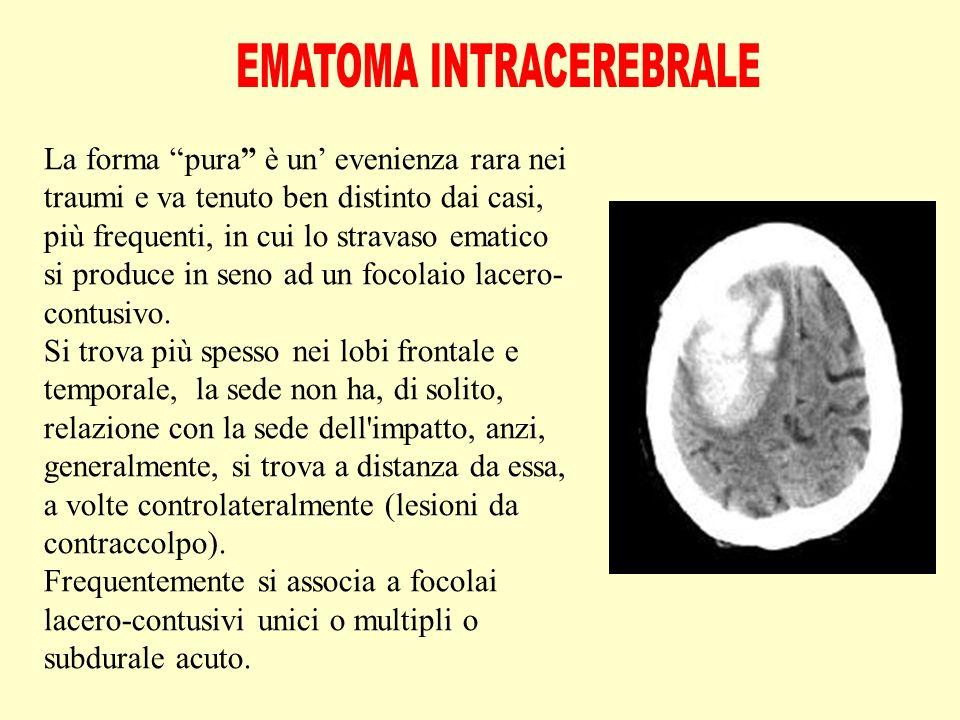 La forma pura è un' evenienza rara nei traumi e va tenuto ben distinto dai casi, più frequenti, in cui lo stravaso ematico si produce in seno ad un focolaio lacero- contusivo.