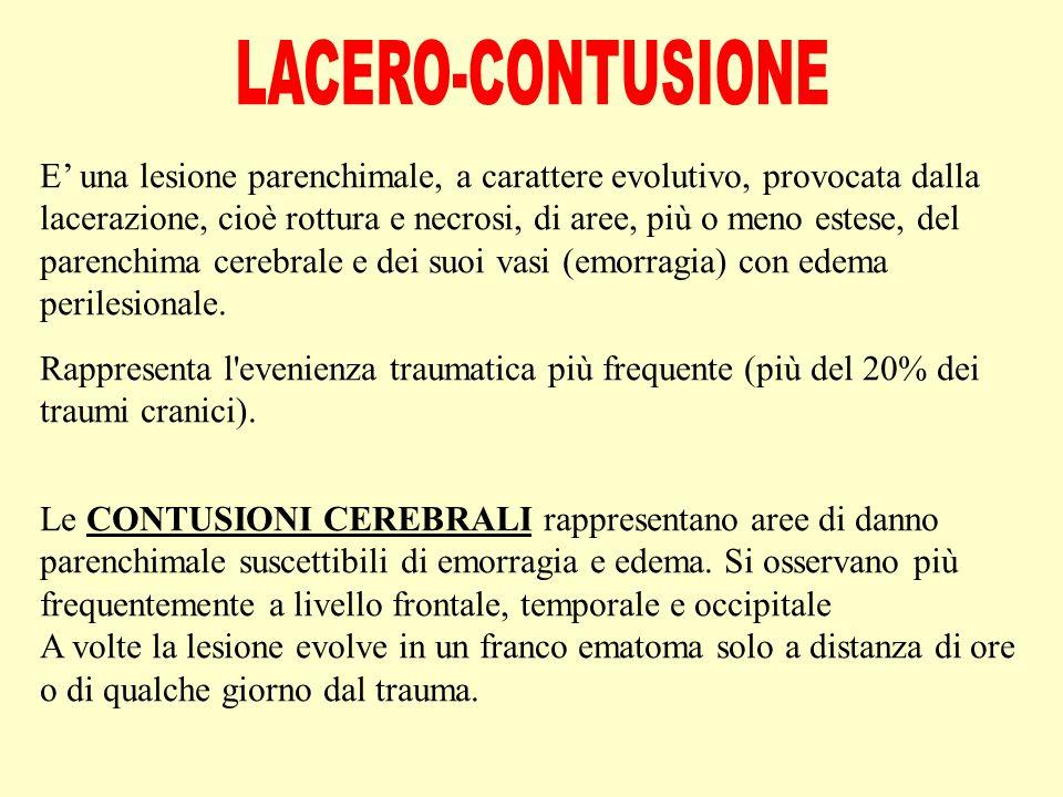 E' una lesione parenchimale, a carattere evolutivo, provocata dalla lacerazione, cioè rottura e necrosi, di aree, più o meno estese, del parenchima cerebrale e dei suoi vasi (emorragia) con edema perilesionale.