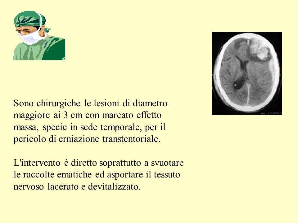 Sono chirurgiche le lesioni di diametro maggiore ai 3 cm con marcato effetto massa, specie in sede temporale, per il pericolo di erniazione transtentoriale.