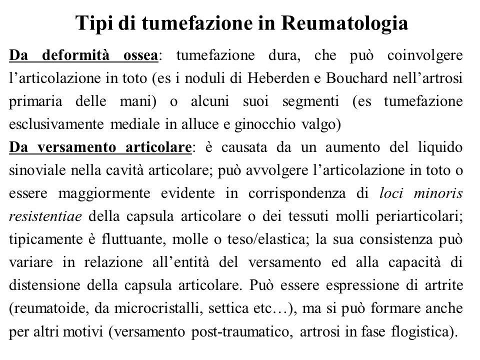 Tipi di tumefazione in Reumatologia Da deformità ossea: tumefazione dura, che può coinvolgere l'articolazione in toto (es i noduli di Heberden e Bouch