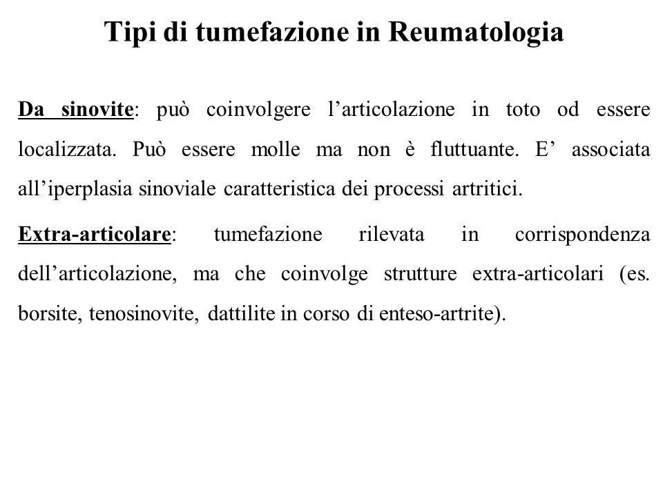 Tipi di tumefazione in Reumatologia Da sinovite: può coinvolgere l'articolazione in toto od essere localizzata. Può essere molle ma non è fluttuante.