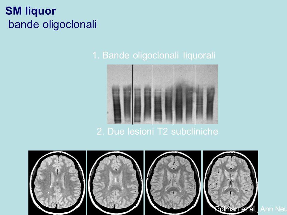 1. Bande oligoclonali liquorali 2. Due lesioni T2 subcliniche Polman et al., Ann Neurol 2005 SM liquor bande oligoclonali