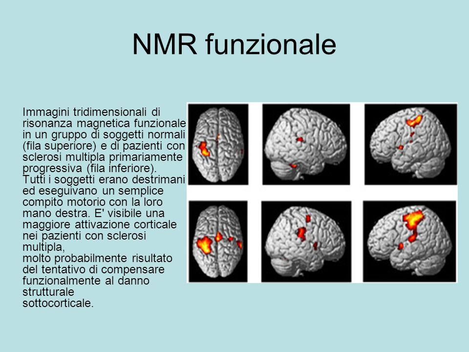 NMR funzionale Immagini tridimensionali di risonanza magnetica funzionale in un gruppo di soggetti normali (fila superiore) e di pazienti con sclerosi