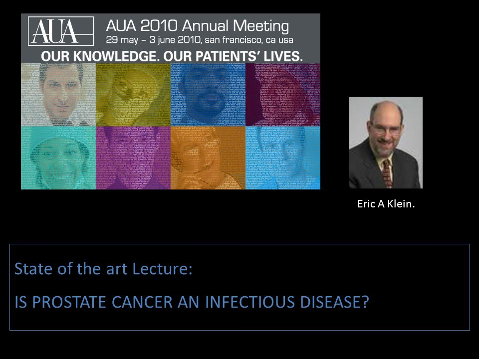 State of the art Lecture: IS PROSTATE CANCER AN INFECTIOUS DISEASE? Eric A Klein.