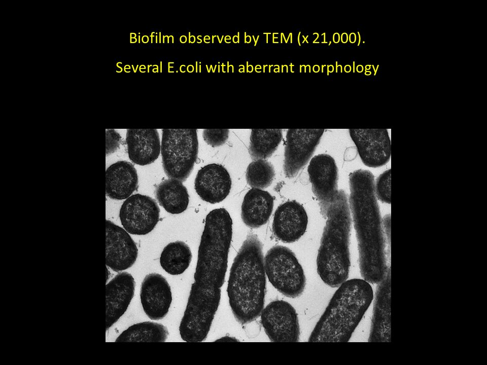 Biofilm observed by TEM (x 21,000). Several E.coli with aberrant morphology
