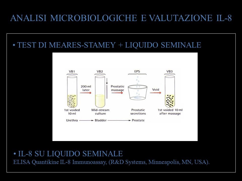 ANALISI MICROBIOLOGICHE E VALUTAZIONE IL-8 TEST DI MEARES-STAMEY + LIQUIDO SEMINALE IL-8 SU LIQUIDO SEMINALE ELISA Quantikine IL-8 Immunoassay, (R&D S