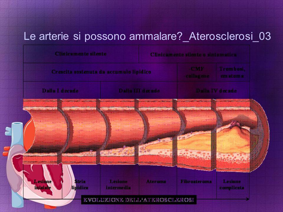 Le arterie si possono ammalare?_Aterosclerosi_03