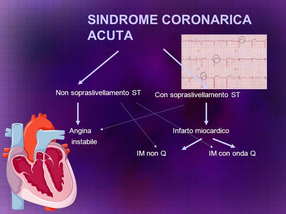 SINDROME CORONARICA ACUTA Non sopraslivellamento ST Con sopraslivellamento ST Infarto miocardicoAngina instabile IM non QIM con onda Q