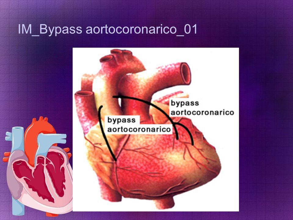 IM_Bypass aortocoronarico_01